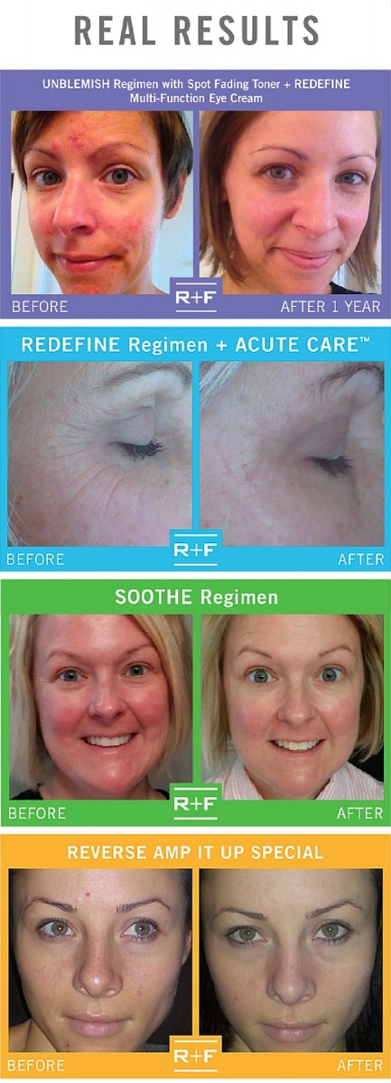 Rodan + Fields Skincare - Before + Afters, Giveaways + More!
